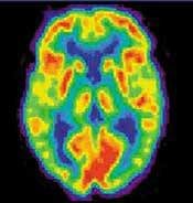 PET scan of a brain; this scan uses a form of fluoride as part of the process