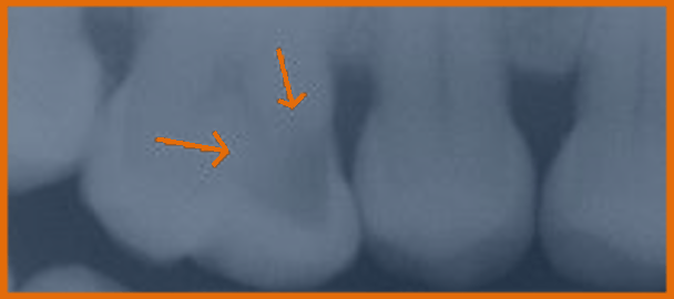 X-ray of several molars, with arrows pointing to darkened spot, which is a cavity